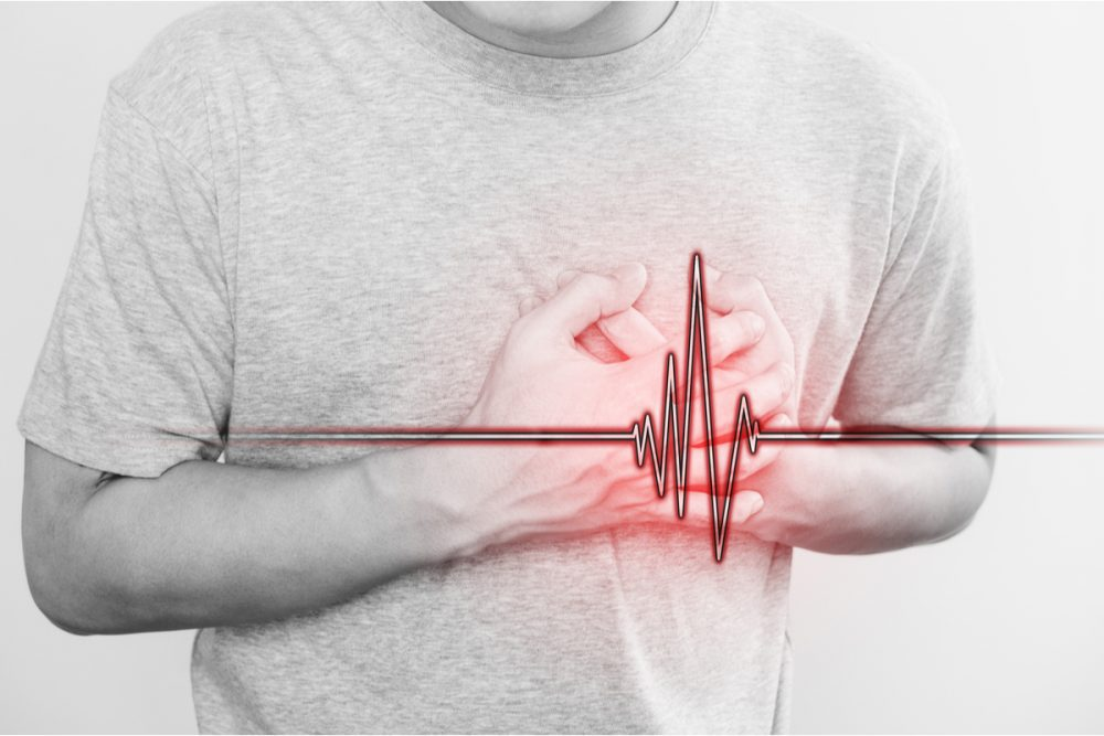 What Is Angina & How to Prevent It