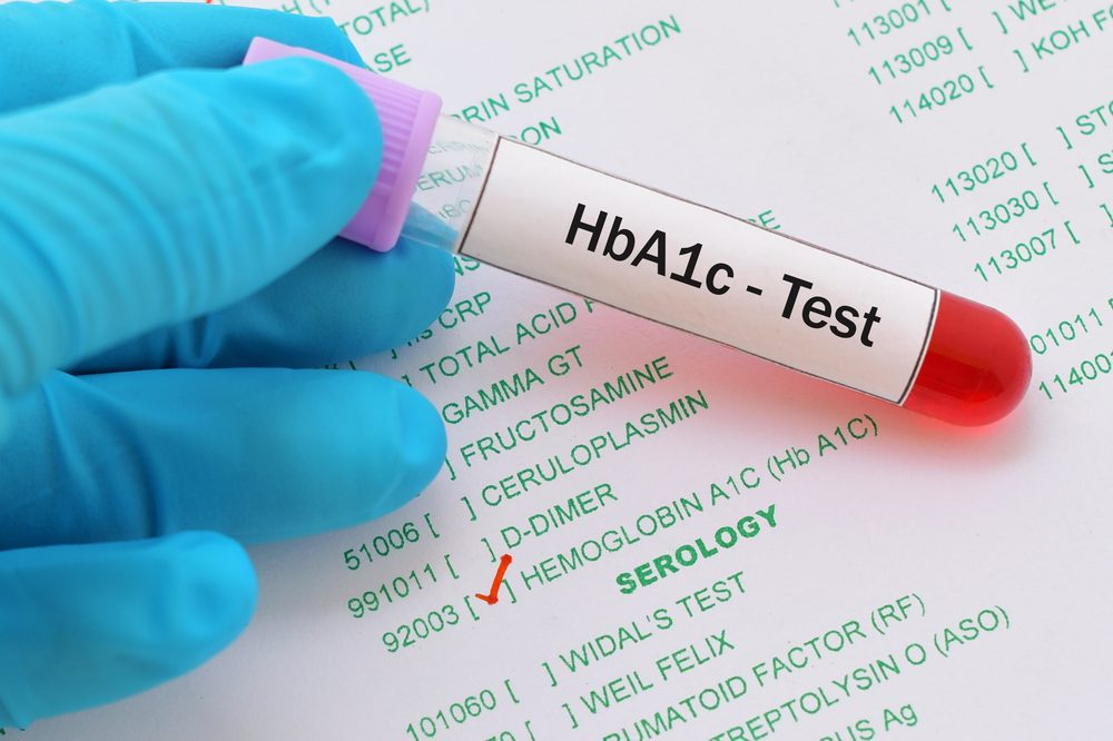 Doctor holding HbA1c test -- What Is HbA1c and How Often to Test