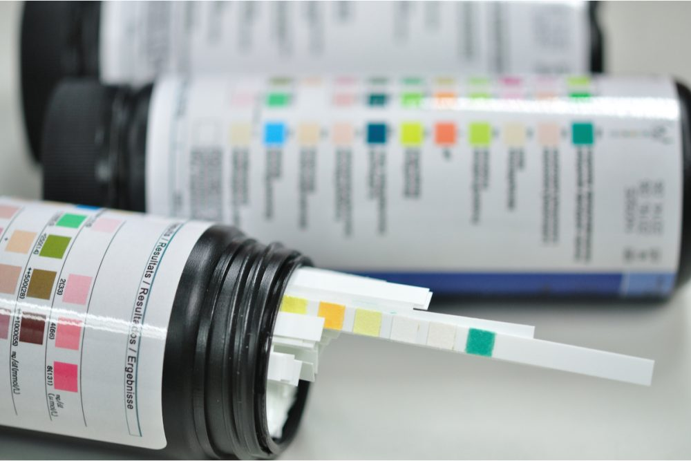 What is the Urine Glucose Test