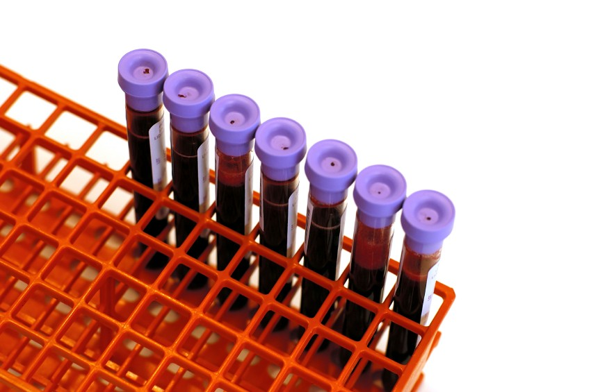 important lab tests for diabetes