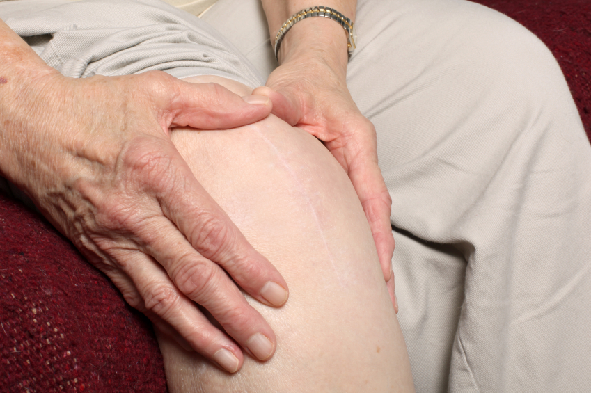 Diet and Exercise Protect Against Knee Pain in Adults With Diabetes