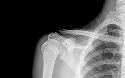 Bariatric Surgery and Your Bones