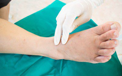 Botox May Relieve Pain From Peripheral Neuropathy, Study Finds