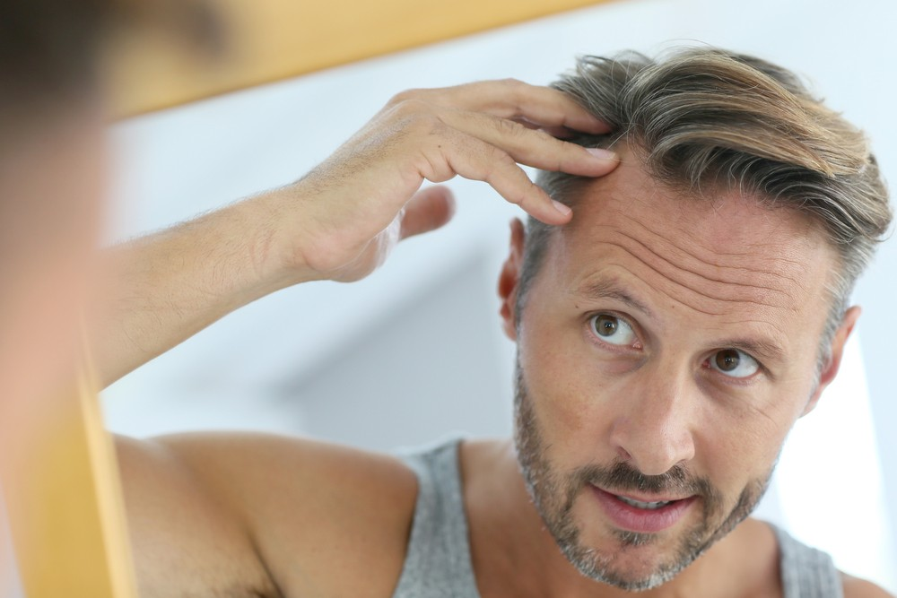 Man inspects effects of diabetic hair loss -- Diabetes and Hair Loss