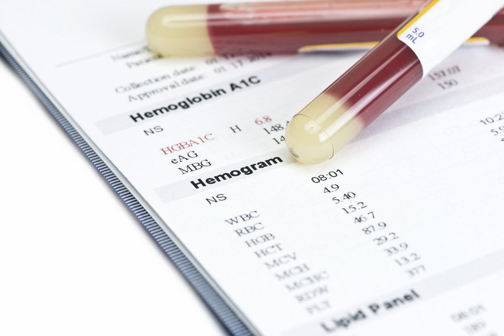 Is Your HbA1c Goal Right For You?
