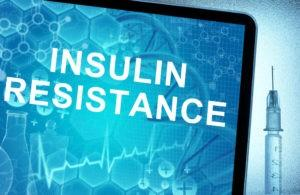 Insulin Resistance: What You Need to Know
