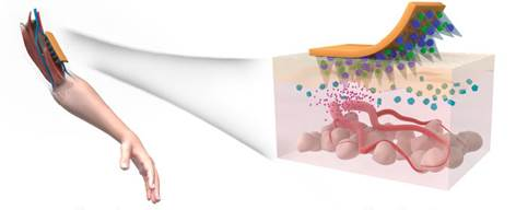 Artist's rendering of the microneedle patch.
