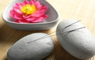 Acupuncture and Diabetes