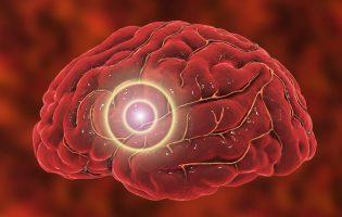 Migraines May Lower Type 2 Diabetes Risk