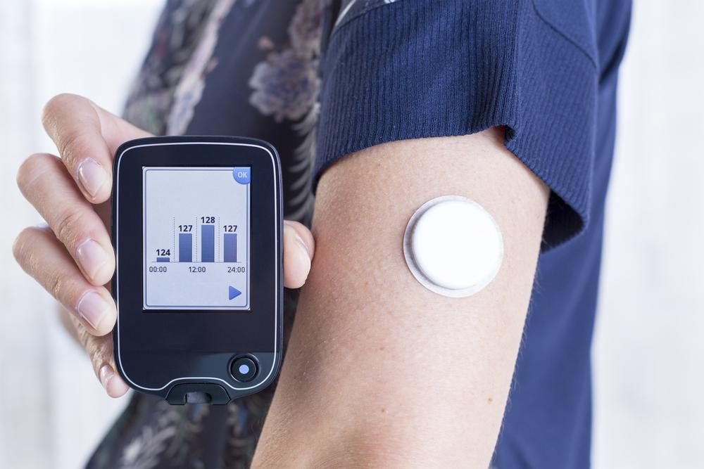 CGM for Diabetes Management