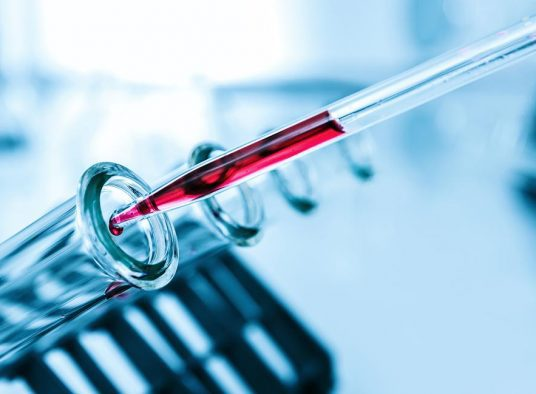 Common Blood Test Could Predict Diabetes: Study