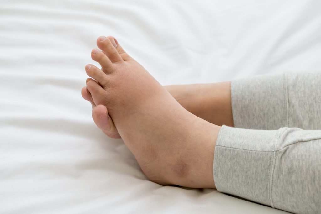 What Is Edema & What Causes It