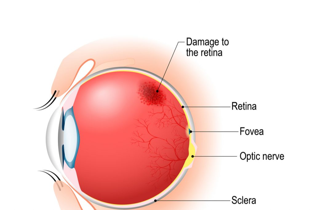 Diagram of eye with retionpathy -- Diabetic Retinopathy Raises Stroke Risk: Study