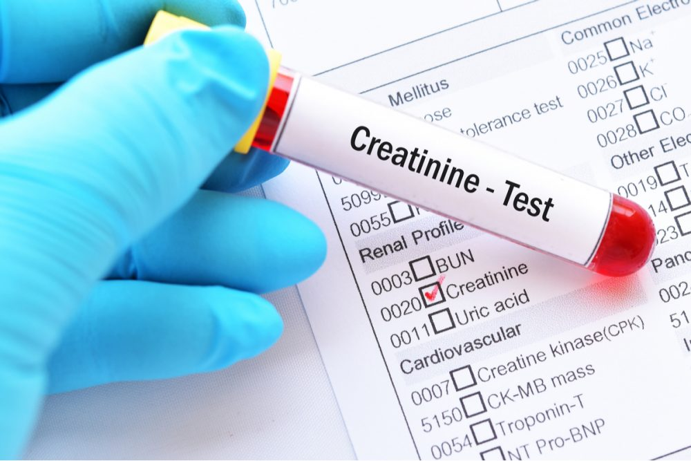 What Is Creatinine