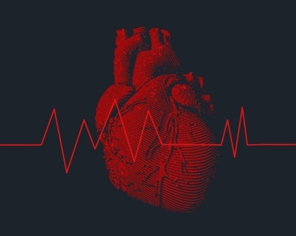 What Is Arrhythmia & How to Treat It