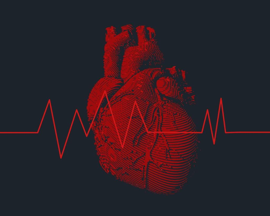 Arrhythmia: Definition and Overview