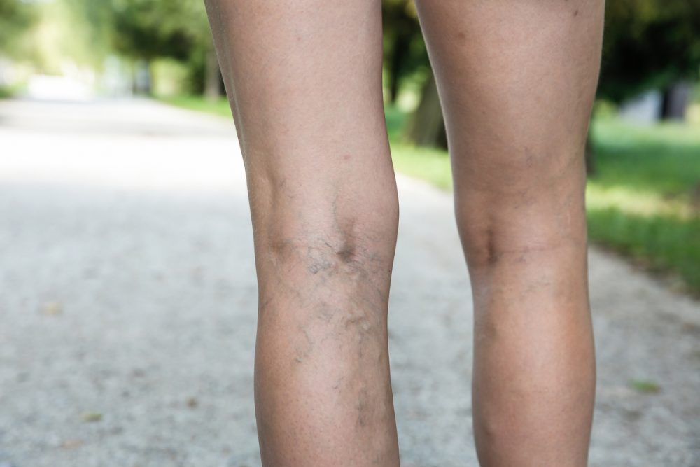 What Are Varicose Veins & How to Prevent It