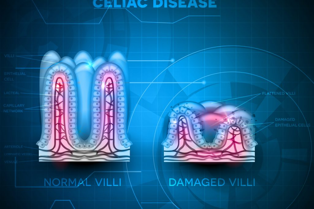 "The ""Double Diagnosis"" of Type 1 Diabetes and Celiac Disease"