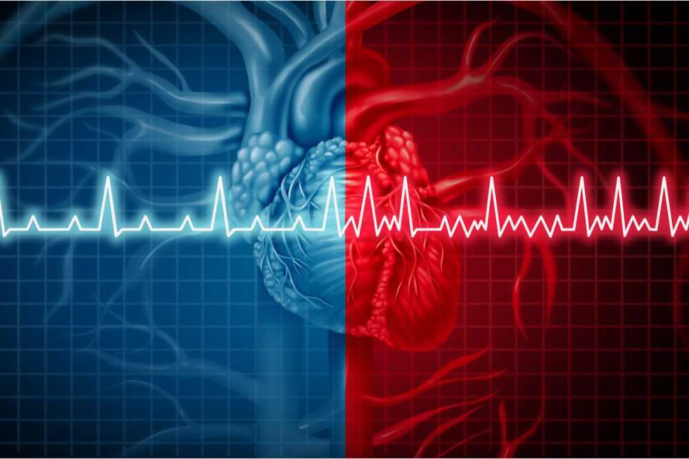 Diabetes and Atrial Fibrillation