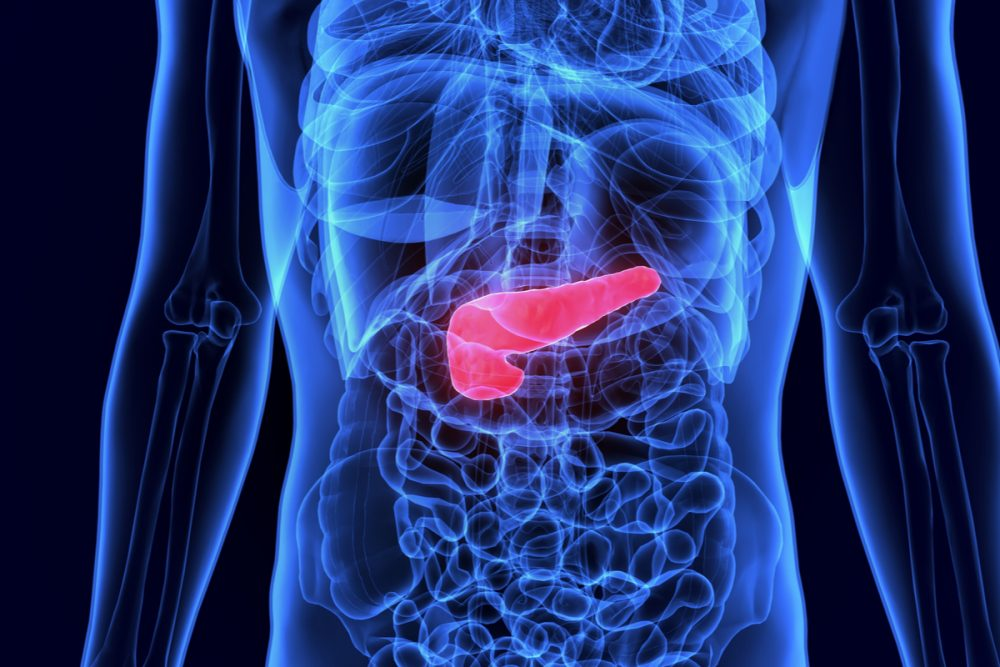 Diabetes, Weight Loss and Pancreatic Cancer