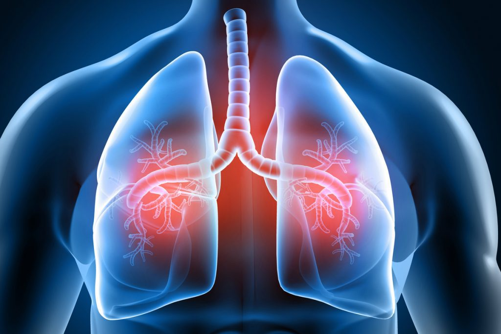 Diabetes and Lung Health