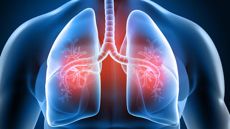 Carbohydrate Quality Linked to Lung Cancer Risk