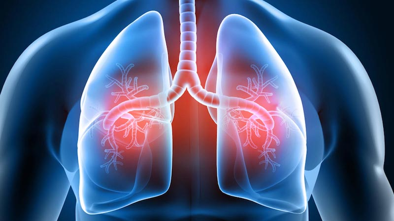 GLP-1 Receptor Agonists Linked to Fewer Asthma Attacks