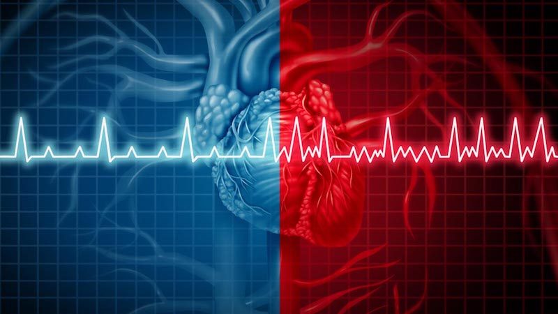 Body Weight and Waist Size Affect Risk for Atrial Fibrillation