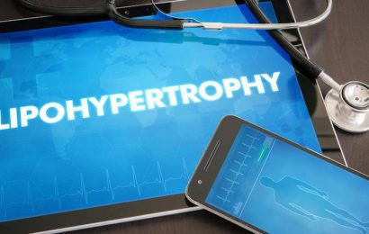 What Is Lipohypertrophy?