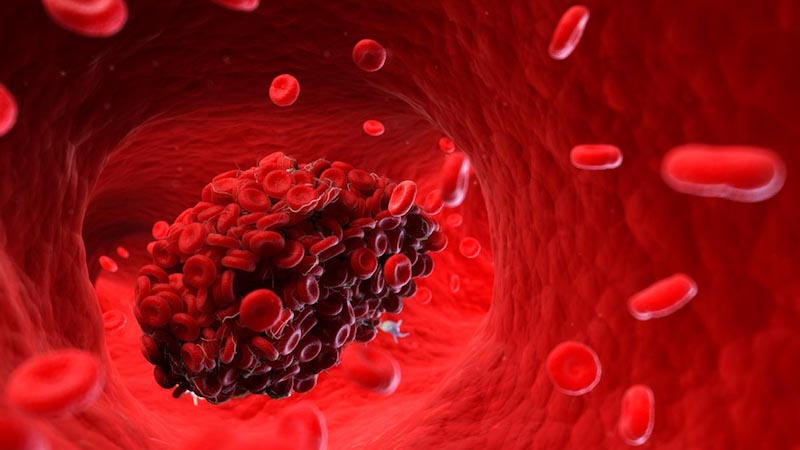 Blood Clots: What to Know