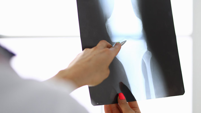 Higher Glucose Levels Linked to Bone Fracture Risk