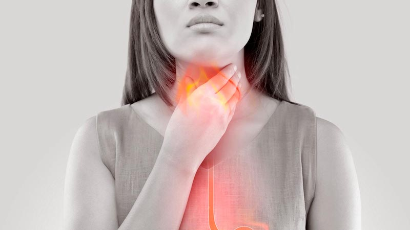 Lifestyle Changes to Manage Acid Reflux