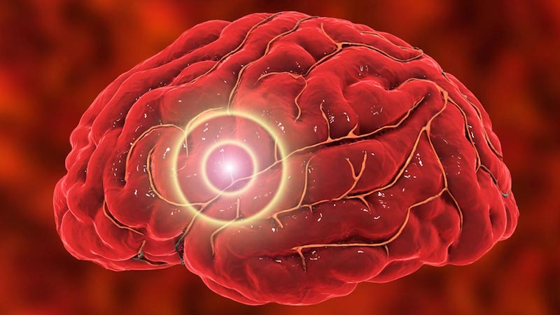 Death Risk After Stroke Linked to Younger Age in Adults With Diabetes