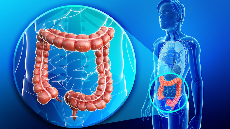 What Is Colorectal Cancer and How Can You Lower Your Risk?