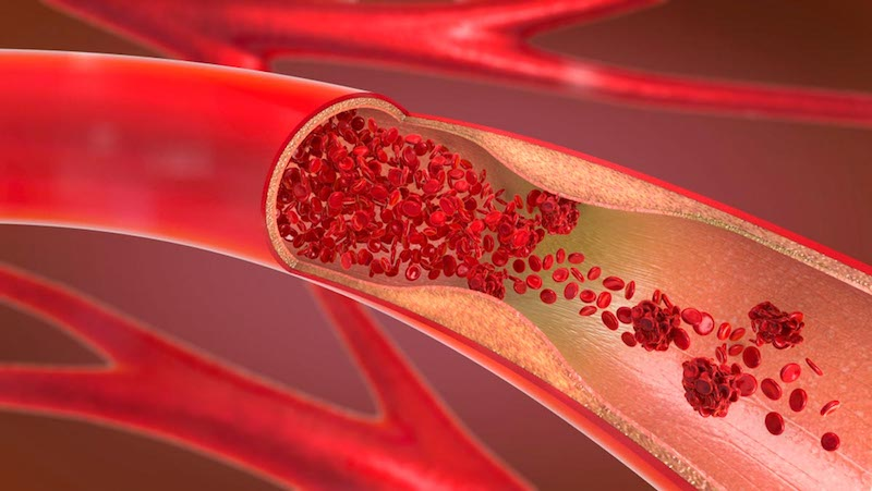 Earlier Cholesterol Levels Predict Coronary Artery Disease in Middle Age